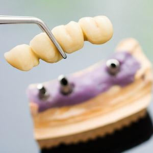 Impianto dentale denti contigui